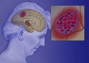 Patofisiologia-300x213
